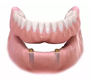 Implantes dentários com o uso de sobre dentaduras ou Ouverdenture