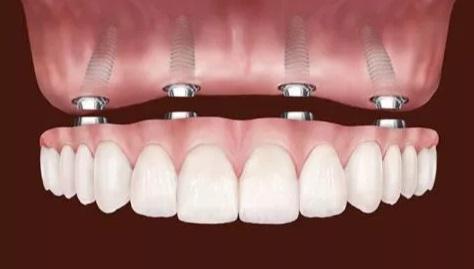 Implantes dentários substituem todos os dentes - Dentadura - Protocolo
