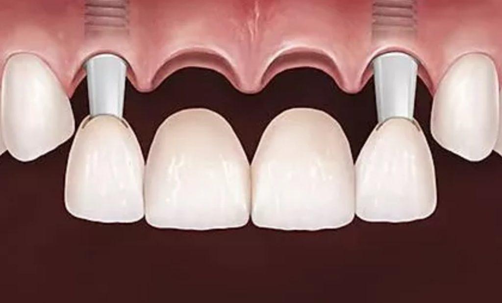 Implantes dentários substituem vários dentes