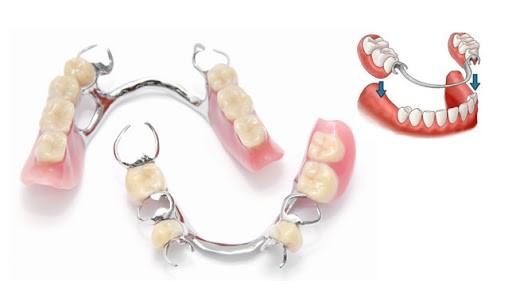Preço dos implantes Dentários opcoes mais baratas 2