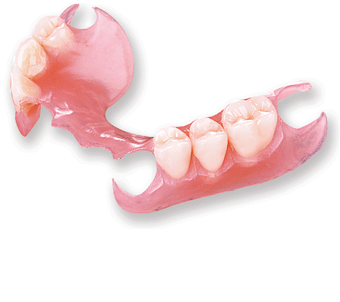 Preço dos implantes Dentários opcoes mais baratas 3