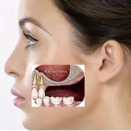 implantes dentarios rejeição problemas sinuviais