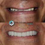 Sorriso e dentição perfeito!